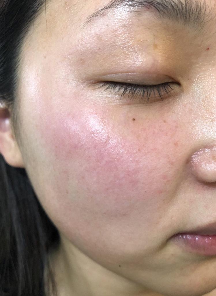 イデアルモイスチャーを使用する前の肌