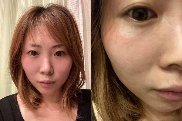 モニケン26日目