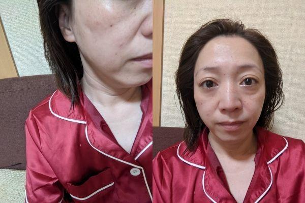 リンクルメディカルモニケン4日目