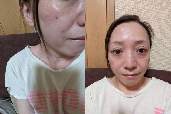 リンクルメディカルモニケン13日目